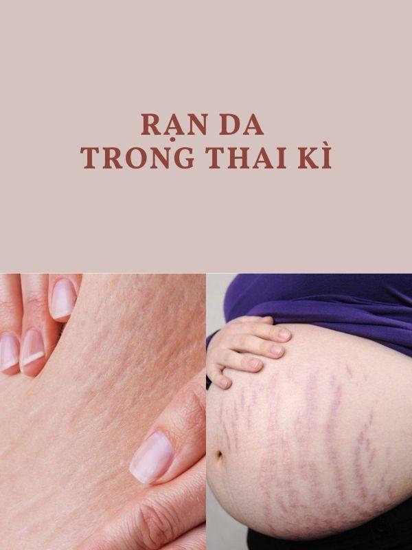 Vì sao bị rạn da trong thai kì?