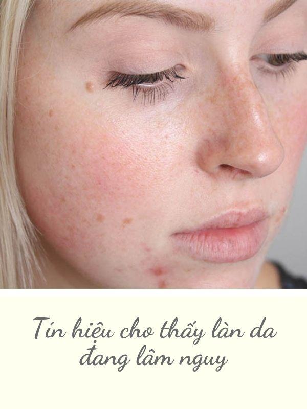 Biểu hiện của làn da đang thương tổn