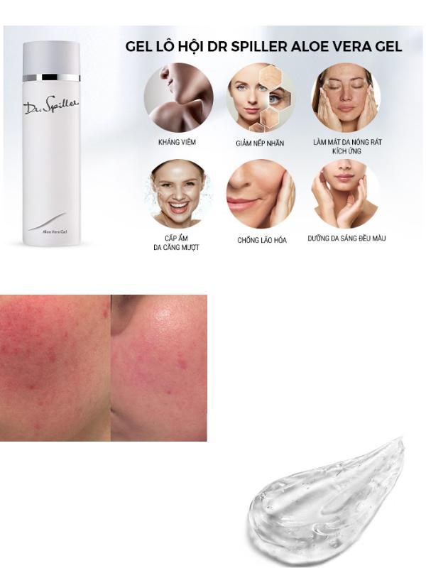 Dr Spiller Aloe Vera Gel đa công dụng với chất gel mềm mát.